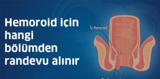 hemoroid_icin_hangi_bolumden_randevu_alinir